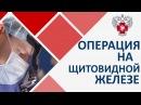 Щитовидная железа операция 🙅 Виды операций на щитовидной железе Пироговский центр