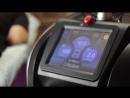 PicoSure - лазер. Процесс удаления татуировки.