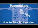 Pacemakers - How to Fix a Broken Heart