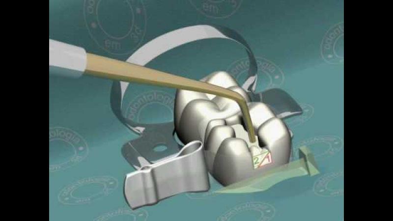 Dentista 3d Restauração em resina