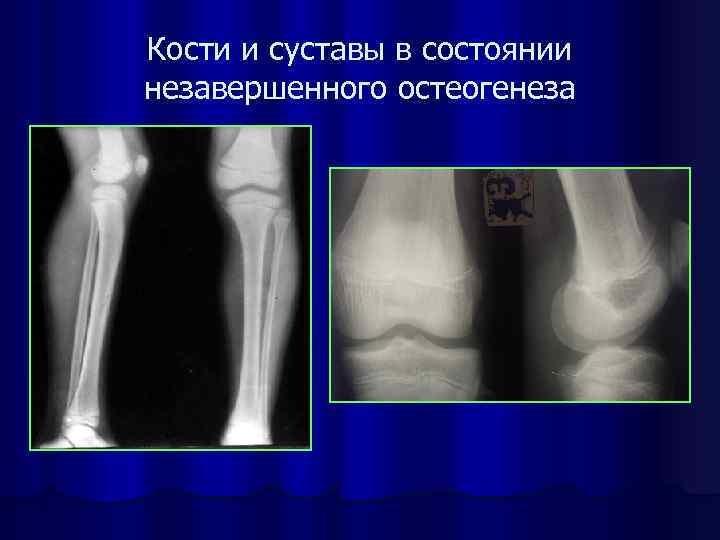 Болезни костей и суставов по народные средства для лечения суставов коленей