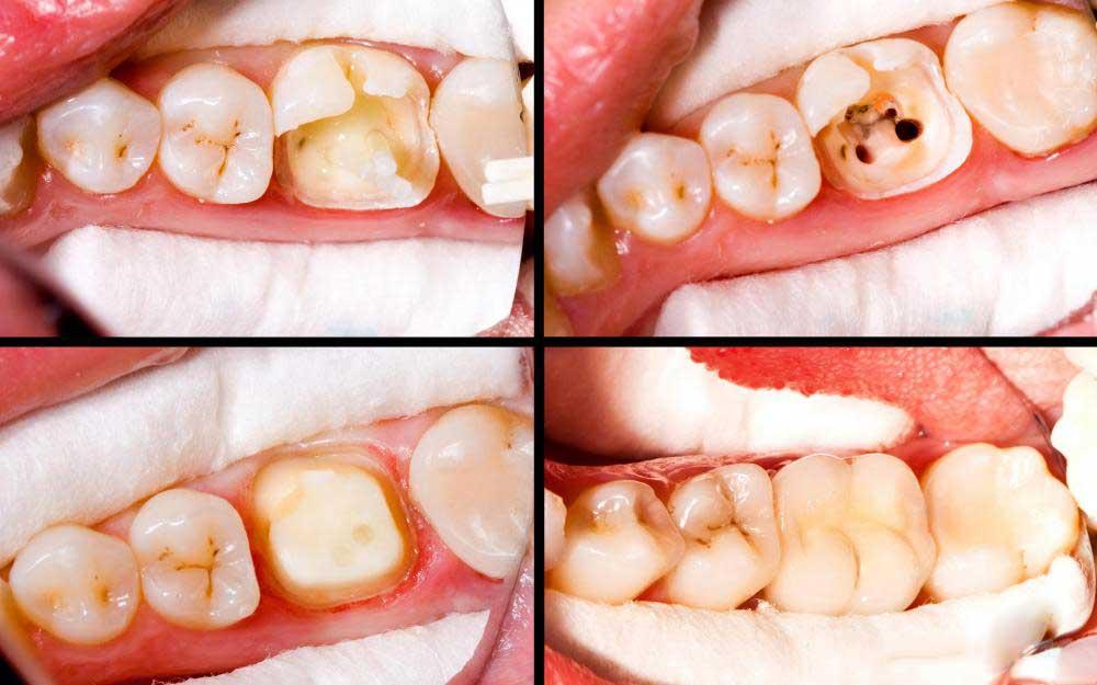Зубы практически в любом состоянии требуют некоторую реставрацию.