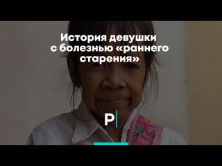 История девушки с болезнью «раннего старения»