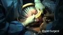 Кесарево сечение с использованием ретрактора. Ножное предлежание.