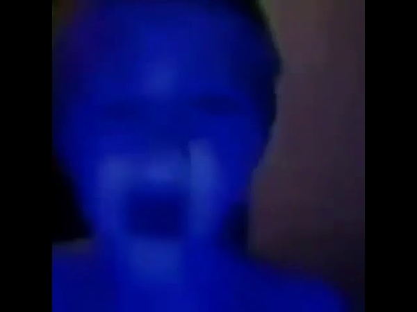 Kid turns blue then he fucking dies