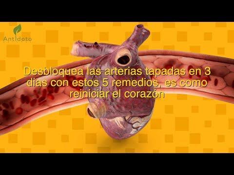 Desbloquea las arterias tapadas en 3 dias con estos 5 remedios, es como reiniciar el corazón