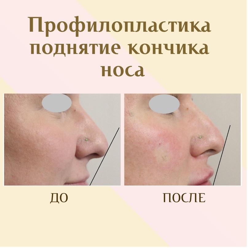 Губы и область вокруг рта., изображение №15